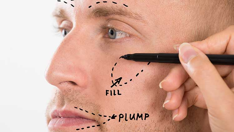 Dermal Filler For Men