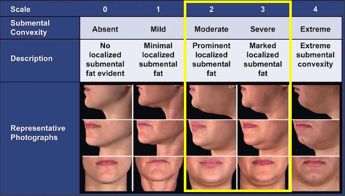 kybella-belkyra-double-chin-guide-1