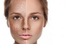 Limelight – Skin Redness, Tiny Veins, Brown Spots and Sun damage